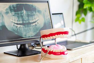 口腔外科イメージ